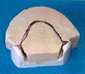 Les empreinte et préparation des bases de piezzographie