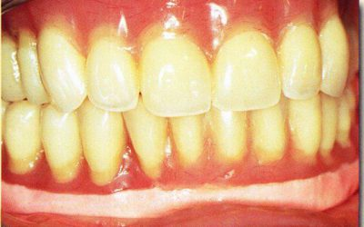 bases souples article complet