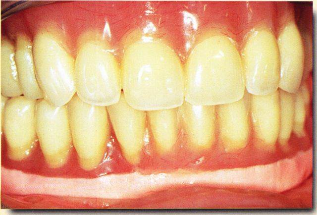 bi maxillaire bases souples