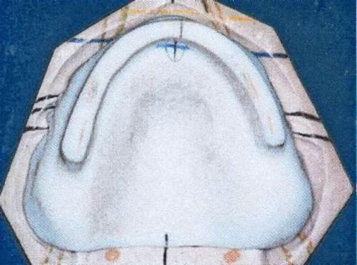 Réglage PEI prothèse complète