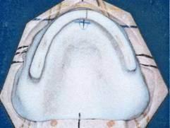 Conception PEI prothèse complète article complet