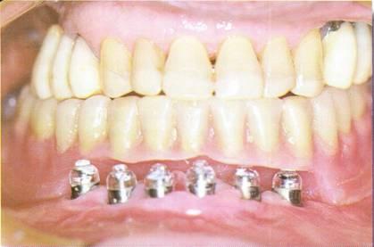 La prothèse temporaire amovible dans le traitement implantaire article complet