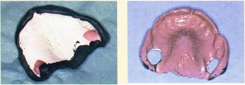 Prothèse de transition cas clinique