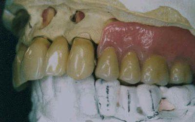Prothèses dentaires : plombent-elles votre santé ?